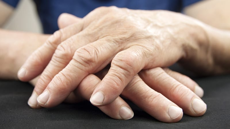 Arthritis Pain in Hands